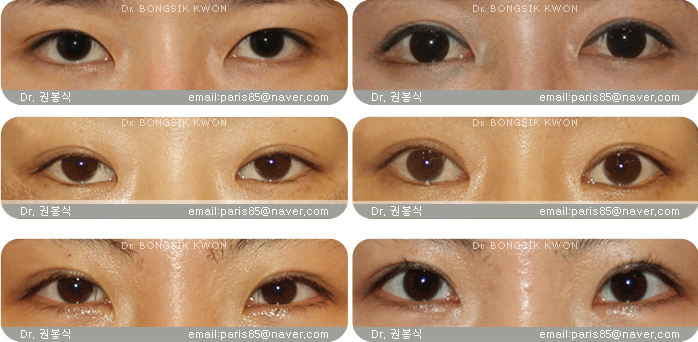 Teuim Aesthetic Plastic Surgery Clinic