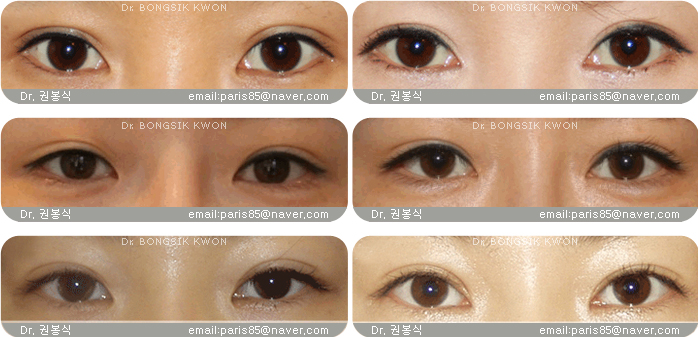 Difference Between Asian Eyes 121