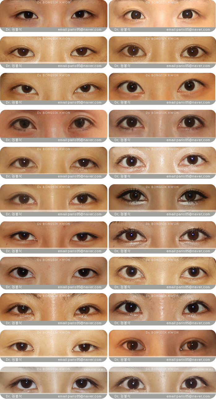 how to make double eyelid permanent