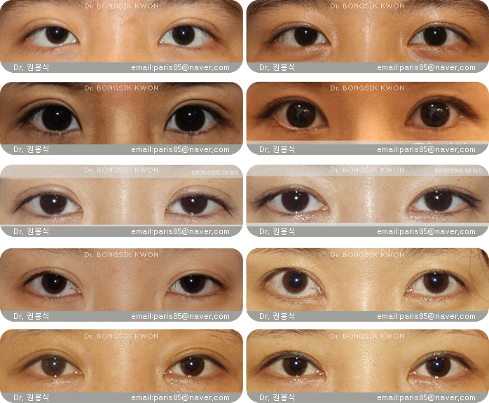 Difference Between Asian Eyes 3