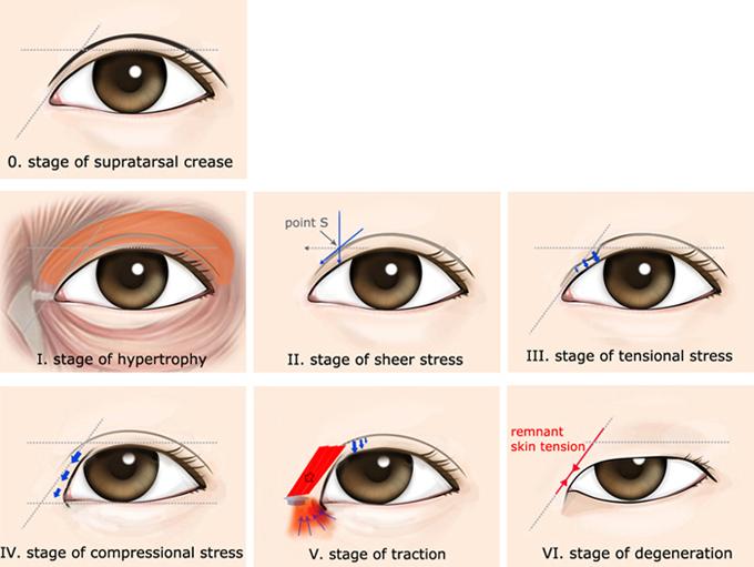Evolution Of Asian Eyes 79